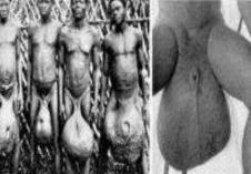 世界上睾丸最大的民族,非洲巨阴族睾丸大如篮球(象皮病所致)