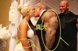 巨臂哥是世界上手臂最粗的人,服用类胆固醇28年最终死亡