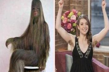 世界上体毛最长的人,艾米丽·苏珊脱毛后照片曝光(返祖现象)