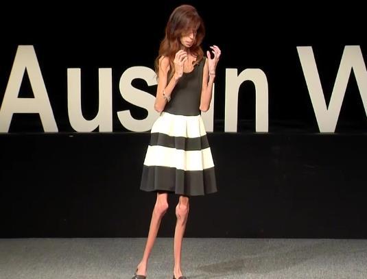 世界上最瘦的人Lizzie Velasquez