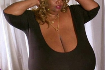 世界上最大的天然乳房,双乳重达77斤(图)