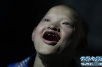 世界上最可怕的怪病,一起来看一下啊吸血鬼症多可怕!