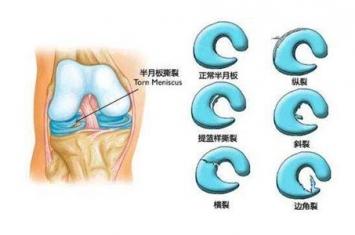 半月板撕裂怎么治疗