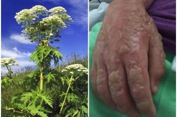 英国大曼彻斯特郊野公园惊现有毒植物大型猪草 儿童误触严重灼伤