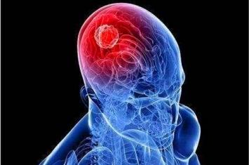 脑压的正常范围是多少
