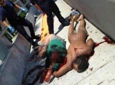美国818丧尸事件,全裸食脸男啃食路人半张脸(图片)