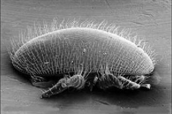 螨虫过敏症是什么